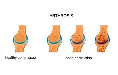 ilustración vectorial de artrosis. destrucción de tejido óseo