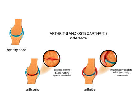vector illustration of the difference between arthrosis and arthritis Ilustração
