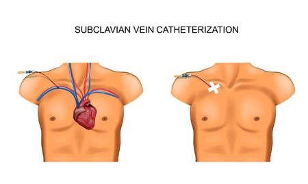 illustration vectorielle de cathétérisme de la veine sous-clavière