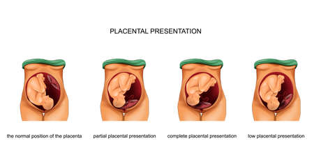 vector illustration of placental presentation norm and pathology