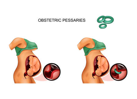 use of obstetric pessarium in the opening of the cervix of the pregnant uterus Imagens - 133719130