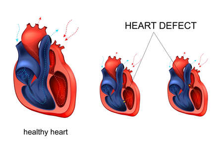 heart disease. defect Stock Illustratie