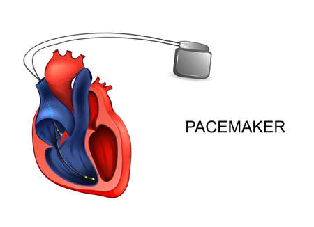heart and pacemaker. cardiology Stock Illustratie