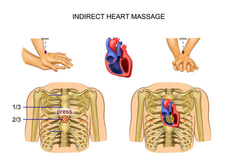vector illustration of indirect heart massage. regulation