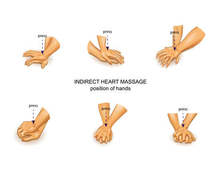 vector illustration of the position of the doctors hands in indirect heart massage
