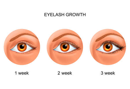 eyelash growth. before and after 스톡 콘텐츠 - 133719234