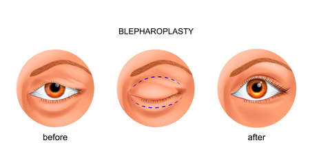 vector illustration of blepharoplasty of the overhanging eyelid Ilustração