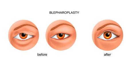 blepharoplasty of the overhanging eyelid and Asian eyelid Illustration