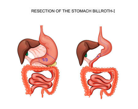 vector illustration of scheme of resection of the stomach Billroth 1 Illustration
