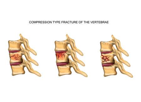 Ilustración vectorial de una fractura de columna vertebral de tipo compresión
