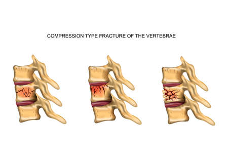 vector illustration of a compression type fracture of the spine