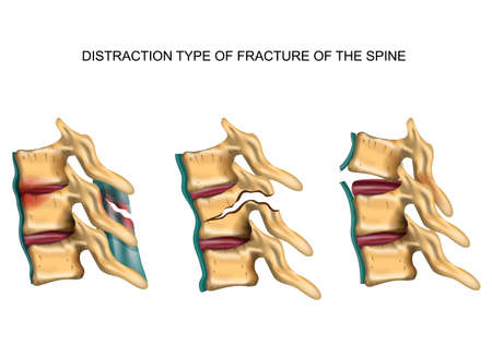 vector illustration of a distraction type of fracture of the spine Illustration