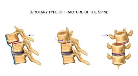 Ilustración vectorial de tipo rotacional de fractura vertebral. Ilustración de vector