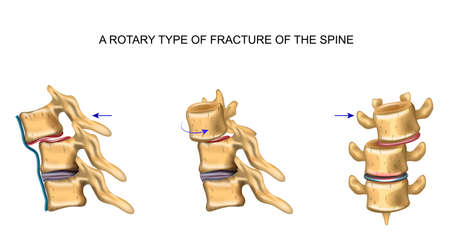 vector illustration of rotational type of vertebral fracture