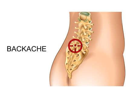 vector illustration of pain in the sacrum and lumbar vertebrae Illustration