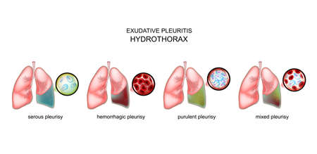 vector illustration of the types of exudative pleurisy and hydrothorax.