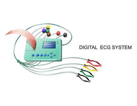 vector illustration of a digital ECG system