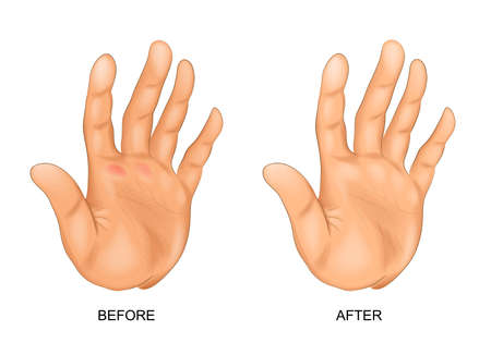 vector illustration of hand with rough skin and hand after Spa treatments 矢量图像