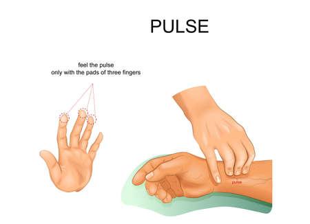 palpación correcta del pulso