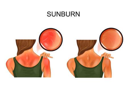 sunburn skin. tan on the girls back