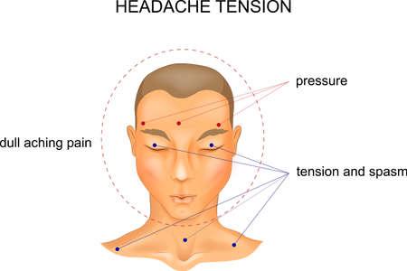 vector illustration of tension headache symptoms Ilustração