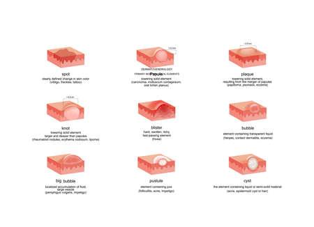 vector illustration of dermatological elements in various diseases Ilustração