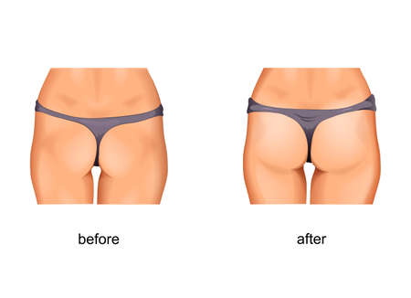 vector illustration of taut gluteal muscles. before and after treatments or fitness