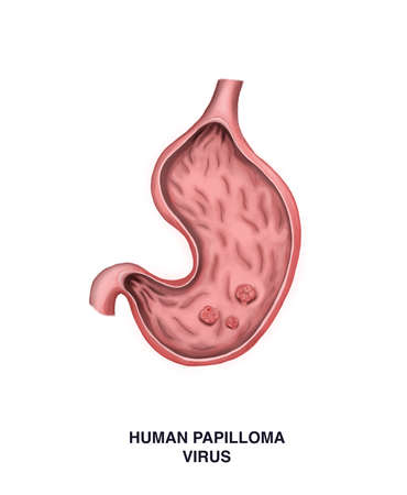 Illustration of papillomatosis of the stomach. Oncology