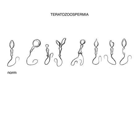 Illustration of the defect sperm. Teratozoospermia Imagens