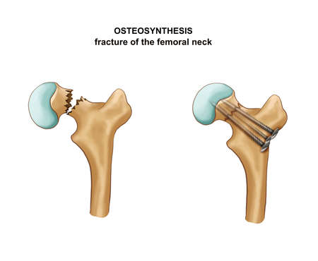 Illustration Of Osteosynthesis. Hip fracture