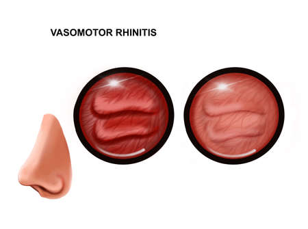 illustration of vasomotor rhinitis of the nasal mucosa. healthy and inflamed