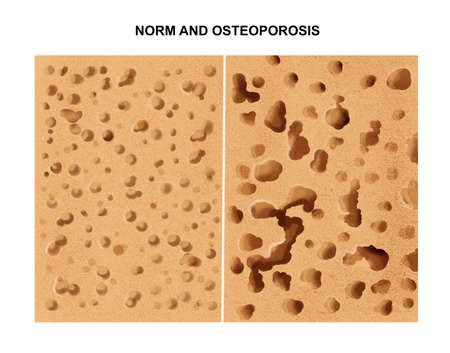 illustration of the Process of osteoporosis Imagens