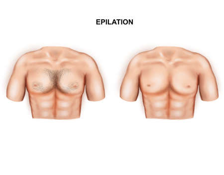 Illustration of the male breast epilation