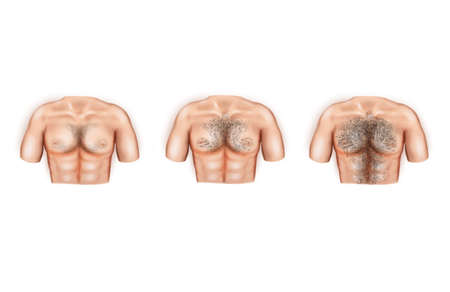 Illustration of the types of male breast hair Imagens