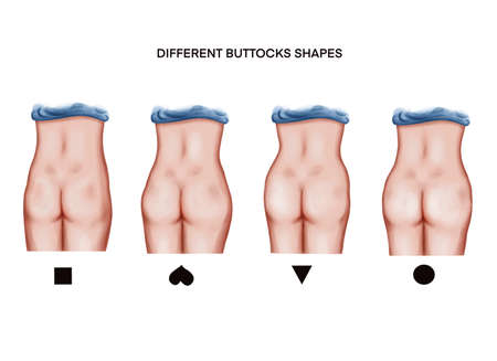 Illustration of the different buttocks shapes 免版税图像