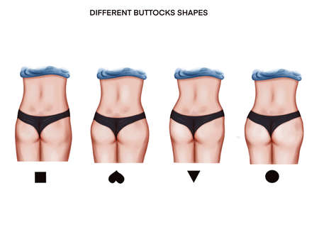 Illustration of the different buttoks shapes 免版税图像