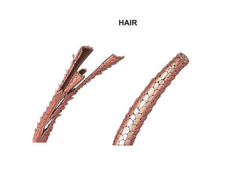illustration of the hair healthy and dry. split ends. treatment.