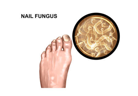 Illustration of the fungal lesion of the foot Stock Photo