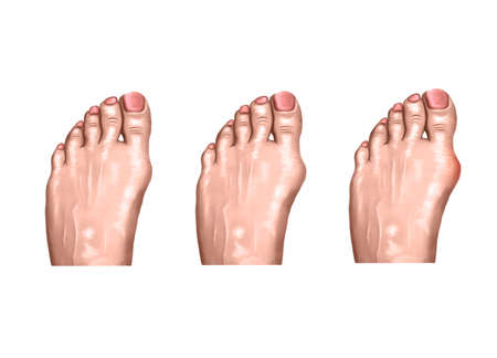 illustration of arthritis injuries of the foot