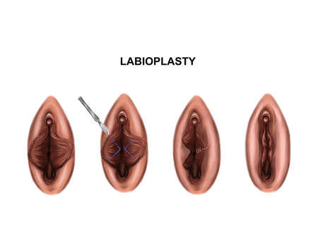 Illustration of the surgery to reduce the labia minora