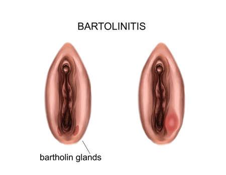 Illustration of the inflammation of the bartholin glands. bartholinitis 免版税图像