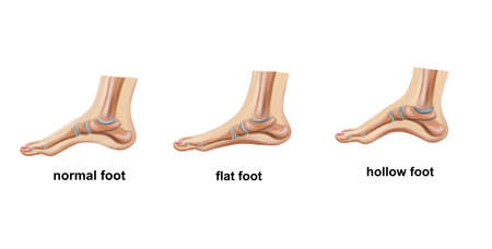 Illustration of the normal foot, flat foot and hollow foot 免版税图像