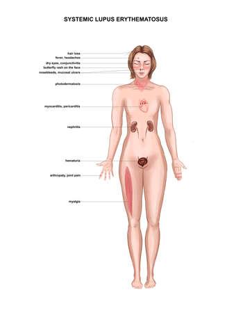 illustration of symptoms of systemic lupus erythematosus