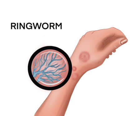 Illustration of the ringworm on the hand