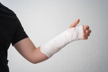 A young man shows the injury of a broken arm in a plaster bandage on a white background. The mans fracture hand barely flexes his fingers