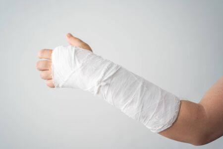 A mans broken arm in a white plaster bandage warms up his injured fingers close-up