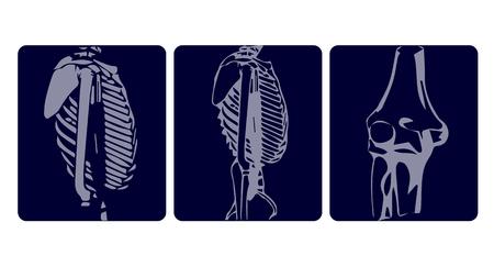 Traumatology. Set of x-rays isolated on white background. Vector illustration.