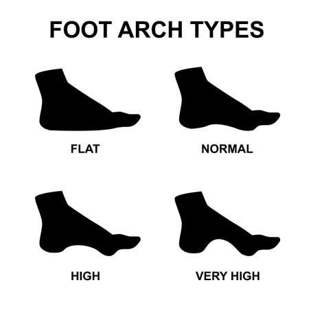 Voetboog types vector infographics. Set van platte voet, hoge boog