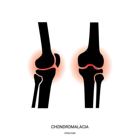 Icono de condromalacia y articulación de la rodilla. Símbolo conjunto de huesos humanos para aplicaciones médicas y sitios web.