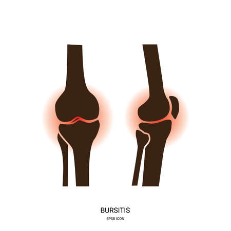 Bursitis and knee joint icon. Human bones joint symbol for medical apps and websites. Illustration